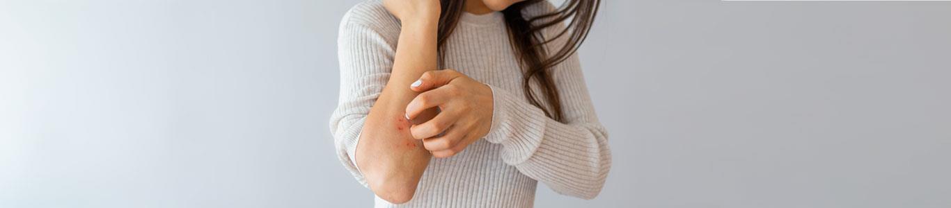 Avances en los tratamientos contra la psoriasis