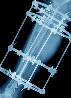 Radiografía de pierna con fijadores externos