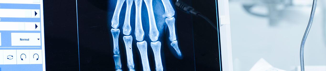 Inteligencia Artificial para diagnosticar la edad ósea