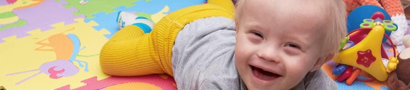 Síndrome de Down: ¿Se puede detectar en el embarazo?
