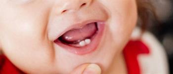¿Qué hacer cuando aparecen los primeros dientes de mi hijo?