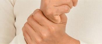 Lupus: Conoce sus síntomas y tratamientos