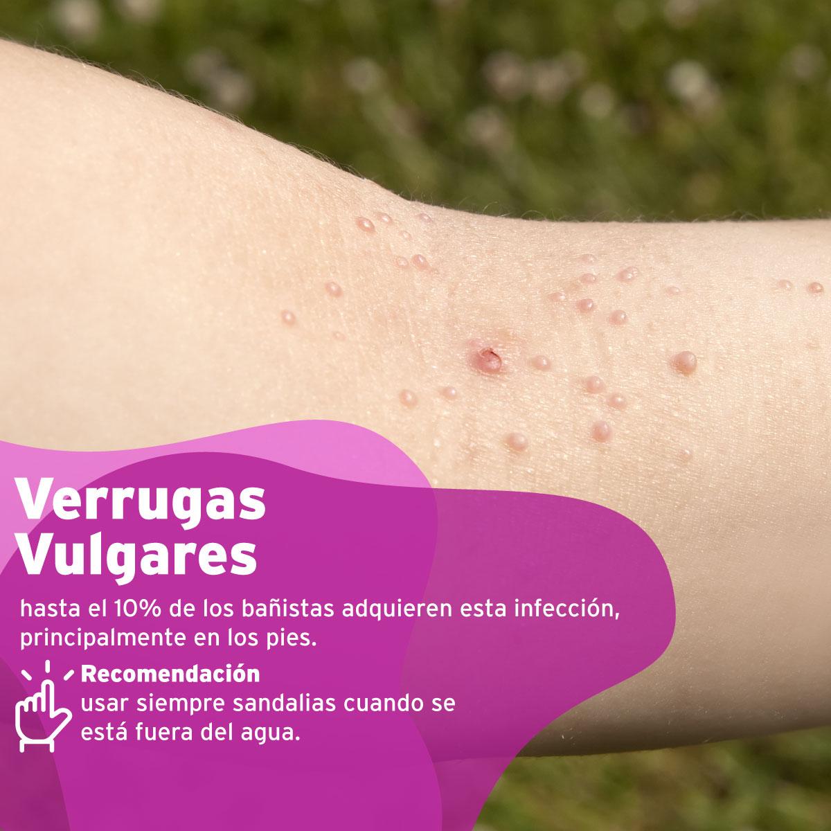 clinicaalemana_articulos_salud_enfermedades_piscina_5