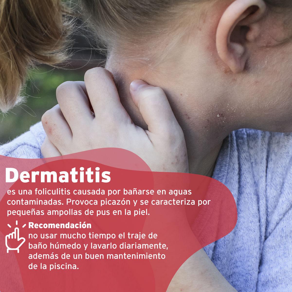 clinicaalemana_articulos_salud_enfermedades_piscina_7