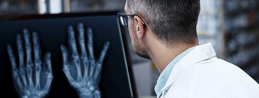 Doctor viendo Radiografia Digital de Mano