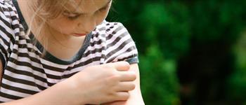 Picaduras de abejas y avispas: ¿Cómo enfrentar un shock anafiláctico?