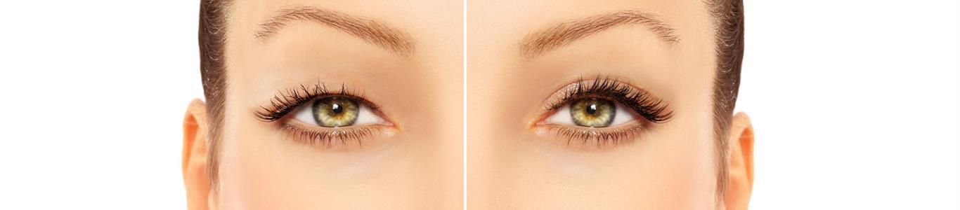 Blefaroplastía estética: para recuperar una mirada joven y descansada