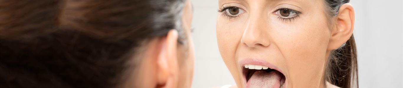 Glositis migratoria benigna: cuando la lengua se vuelve geográfica