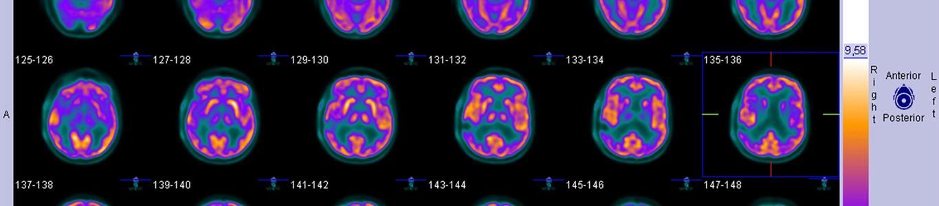Avanzando juntos en el tratamiento de las epilepsias