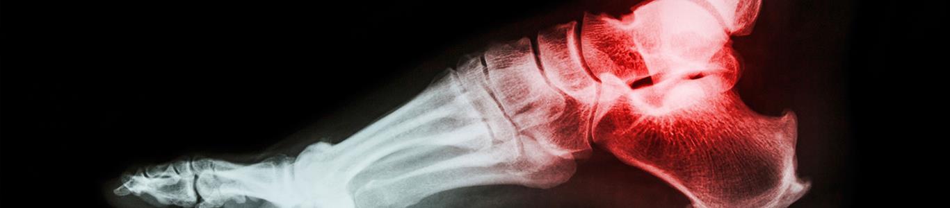Esguince de tobillo: una lesión frecuente que se debe tratar