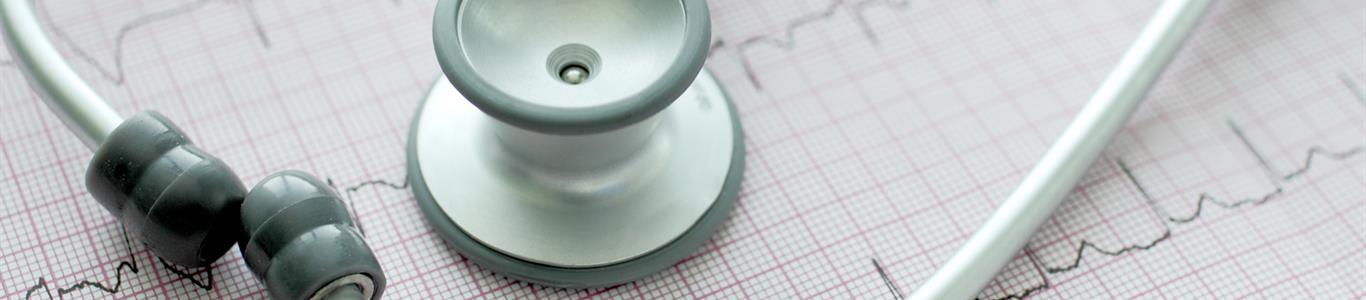 Fibrilación auricular: cuando el corazón palpita a un ritmo irregular