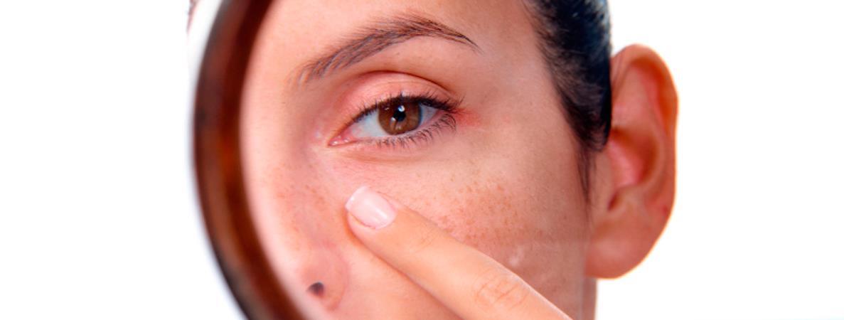 Verano: tiempo de manchas en la piel , cuidado.