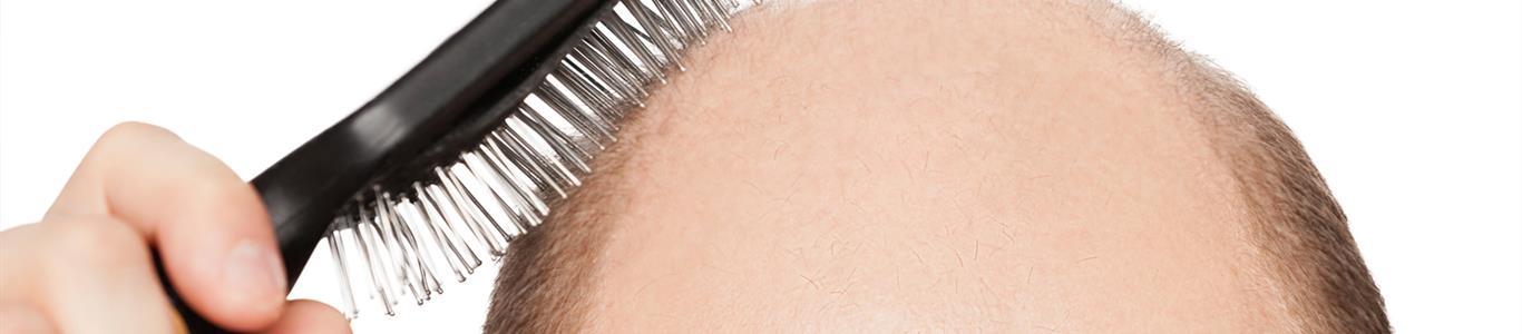 Qué hacer frente a la caída de el cabello