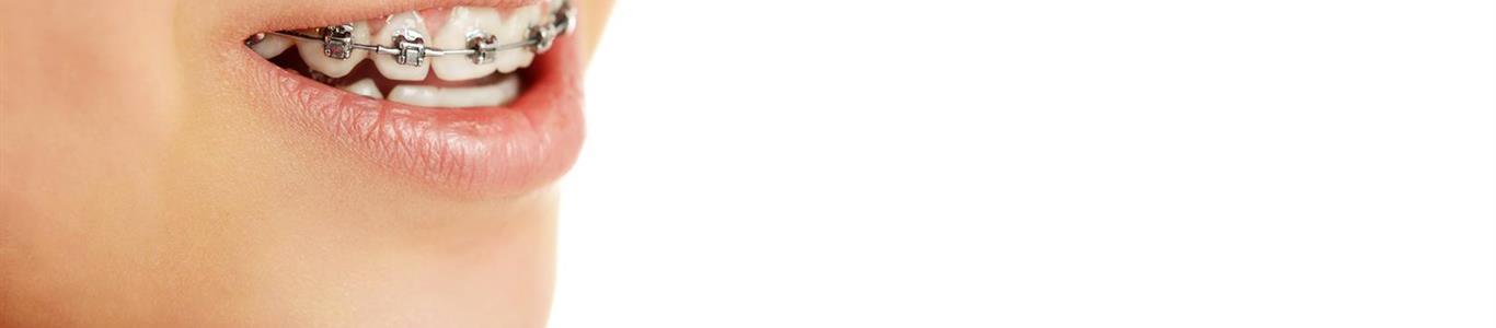 Frenillos fijos: por qué se usan y qué cuidados exigen