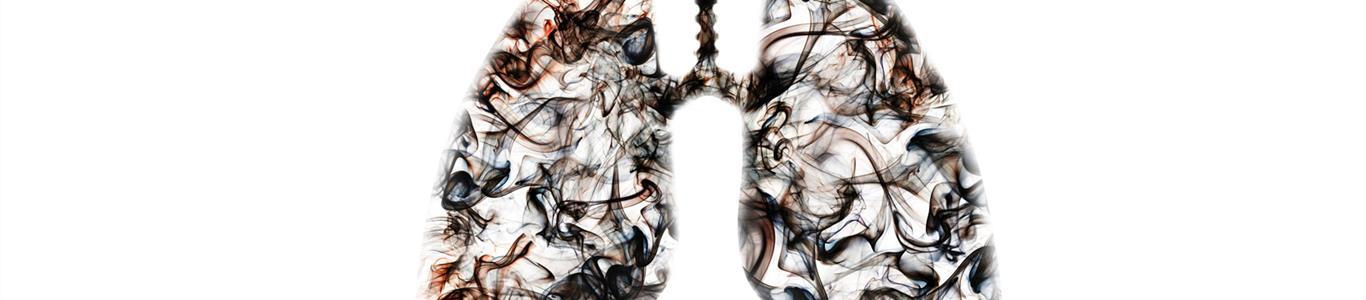 La directa relación entre tabaco y enfermedad pulmonar obstructiva crónica