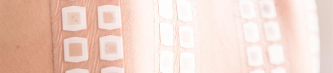 Nuevo examen mejora diagnóstico de dermatitis de contacto
