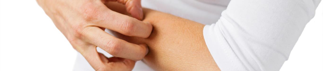 Día Mundial de la Urticaria: una patología que hoy tiene solución