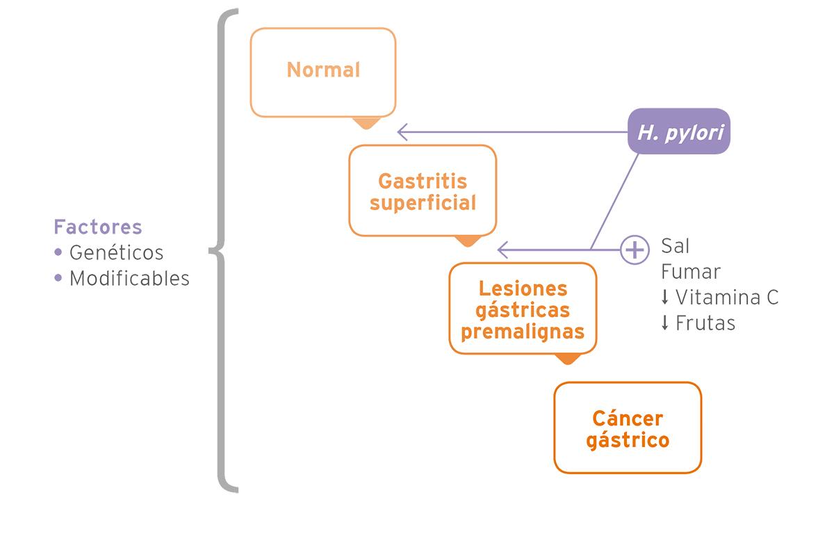 Carcinogénesis Gástrica